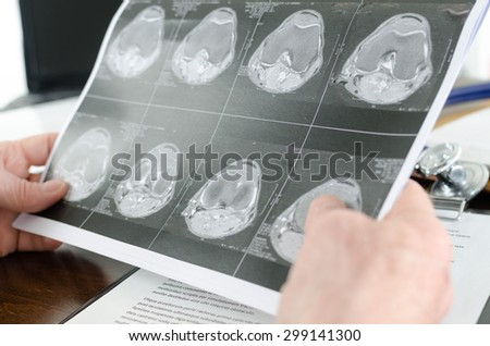 Doctor holding a MRI scan, closeup - stock photo