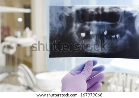 Doctor holding and looking at dental x-ray - stock photo