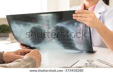 doctor holding x-ray or roentgen image in hospital with patients - stock photo