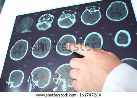Doctor identifies on the fragment of CT image. - stock photo