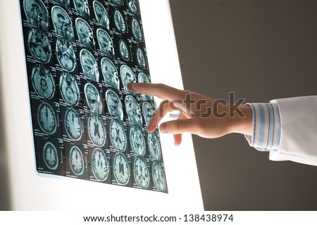 Doctor male hand image shows the x-ray attached to the glowing screen - stock photo