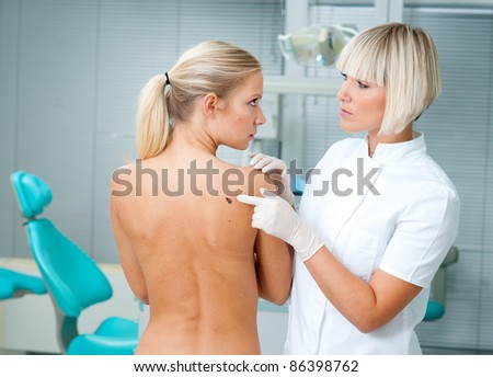 doctor pointing at melanoma on woman back - stock photo