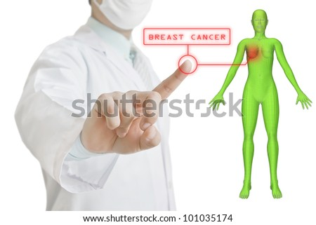 Doctor pointing to the 3D model of woman breast cancer - stock photo
