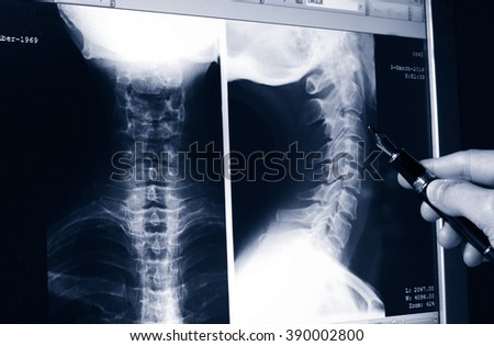 Doctor showing a detail on a x-ray radiography of neck