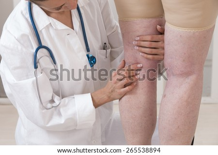 doctor showing varicose veins from an elderly woman - stock photo