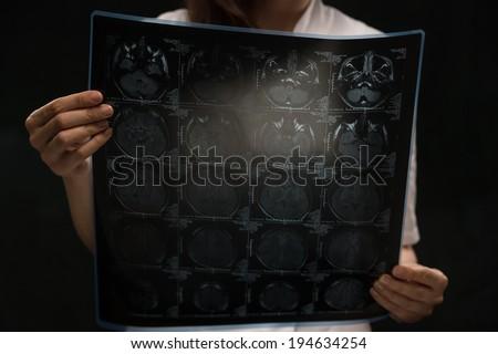 Doctor viewing mri x-ray of brain - stock photo