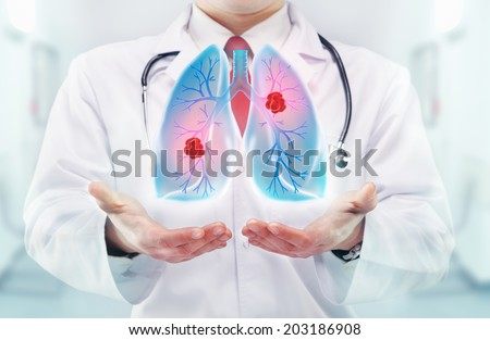 Doctor with lungs in hands in a hospital - stock photo