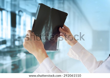 Doctor with Mammography - stock photo