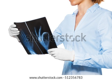 Doctor with xray of patient hand and fingers