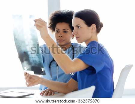 doctors with x-ray image of spine at hospital - stock photo