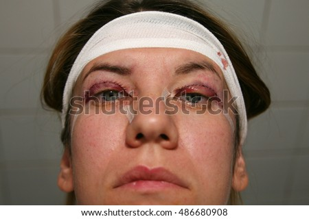 Double Eyelid Surgery, Eyes Surgery Recover Period, immediately after plastic surgery