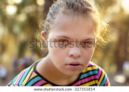 Down Syndrome Girl - Stock Image - stock photo
