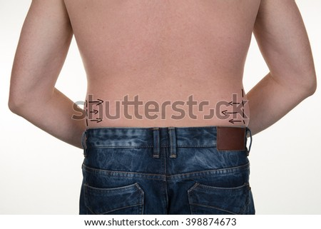 Drawing correction arrows on hips of man before plastic surgery