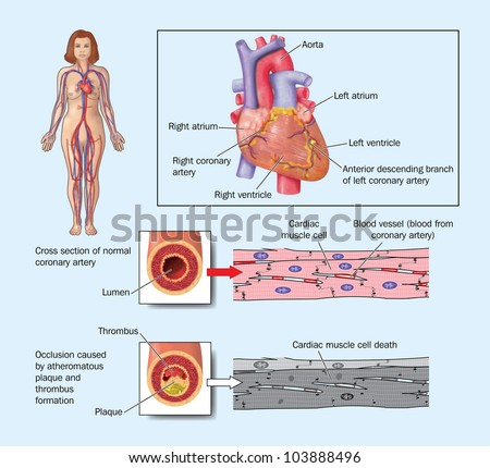 Drawing heart showing coronary arteries blocked stock illustration drawing of the heart showing coronary arteries blocked by atheroma plaque and thrombosis ccuart Image collections