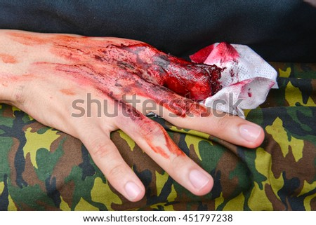 Dress the wound, Fake wound on the hands for learning in simulation training for treatment, wound makeup special effect, selective focus, abstract blur background, shallow depth of field