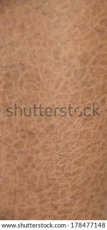 dry skin (ichthyosis) detail - stock photo