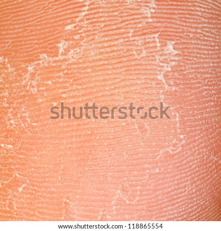 dry skin texture under foot - stock photo