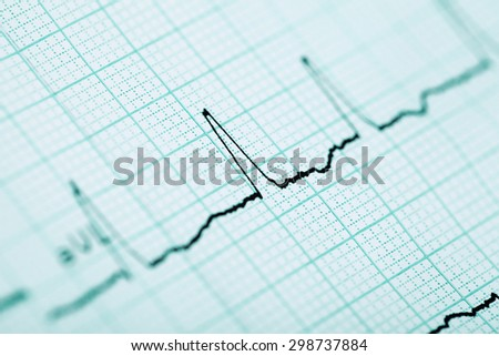 ECG medical background for your use - stock photo
