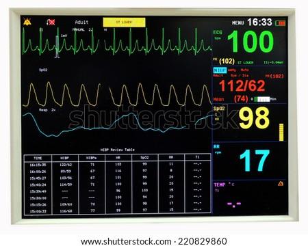 ECG monitor  - stock photo