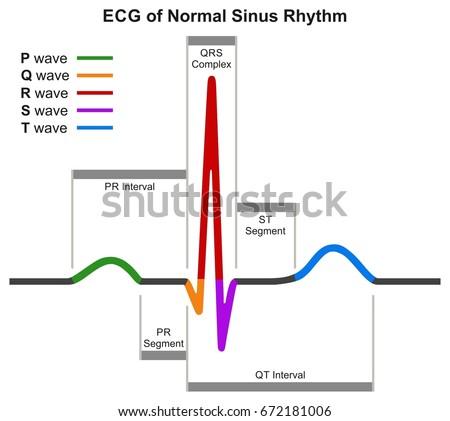 ecg normal sinus rhythm infographic diagram stock illustration rh shutterstock com heartbeat diagram labeled heart beat rate diagram