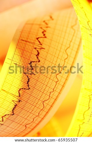 ECG(Pulse trace) for medical backgrounds - stock photo