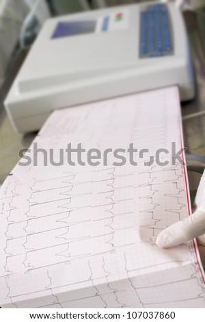 ECG recording in the hospital. Photos - stock photo