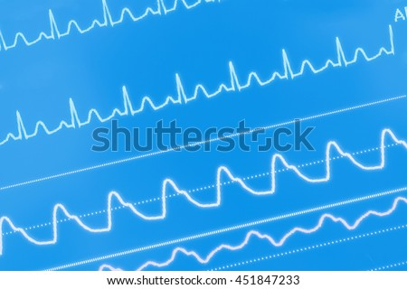 ECG waves on the screen.