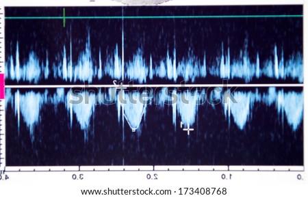Echocardiography - Doppler echocardiogram. Photo - stock photo