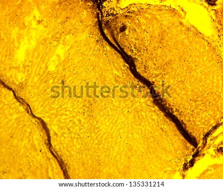 Eimeria stiedae (causing hepatic (liver) coccidiosis in rabbits) - permanent slide plate under high magnification - stock photo