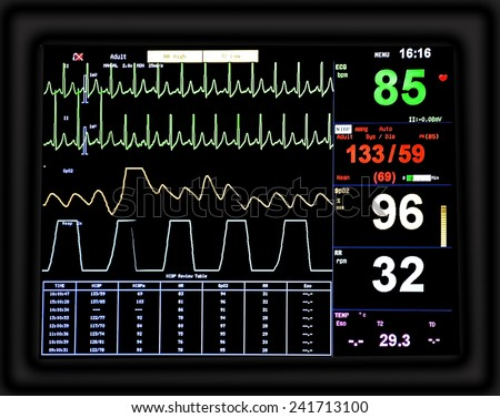 EKG monitor - stock photo
