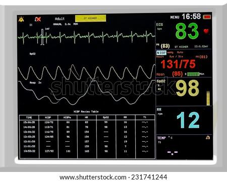 EKG monitor in ICU unit - stock photo