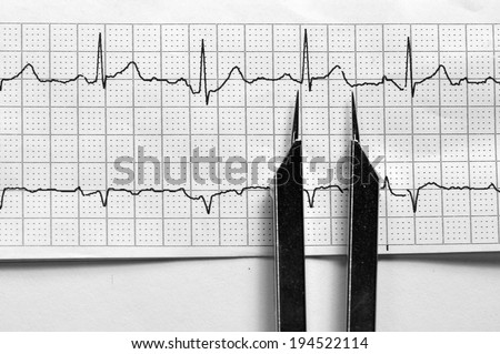 EKG Strip with Calipers/Normal Sinus Rhythm - stock photo