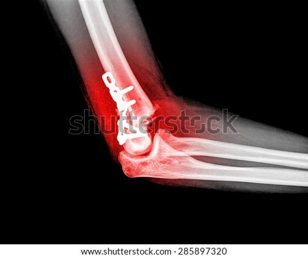 Elbow joint X-ray view from radiology imagery - stock photo