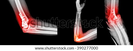 Elbow joint X-ray view from radiology imagery
