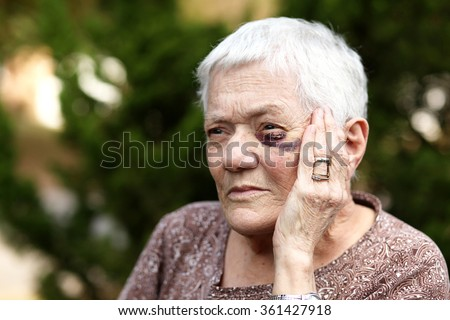 Elderly woman with black eye holding hand to her eye. - stock photo