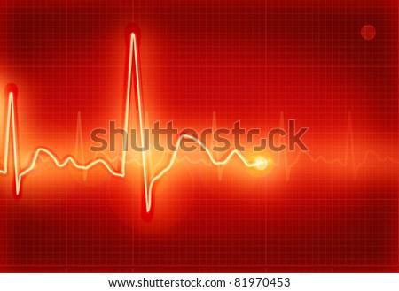 Electrocardiogram, bitmap copy - stock photo