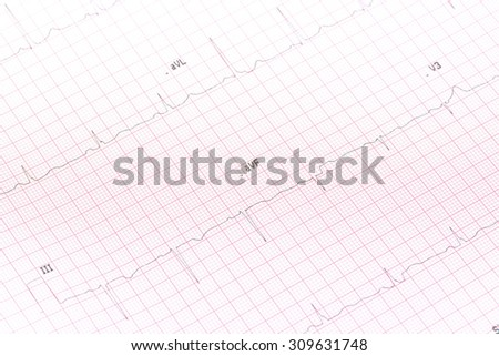 Electrocardiogram close-up - stock photo