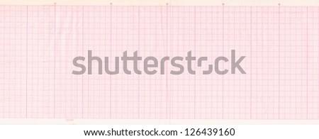 Electrocardiogram (ECG) - stock photo