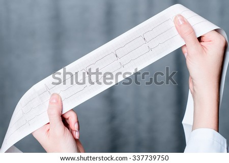 Electrocardiogram, ecg in hand, palm of a doctor. Medical health care. Clinic cardiology heart rhythm and pulse test closeup. Cardiogram printout.  - stock photo