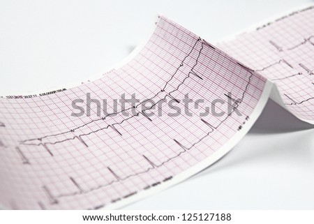 Electrocardiogram, heart EKG test - stock photo