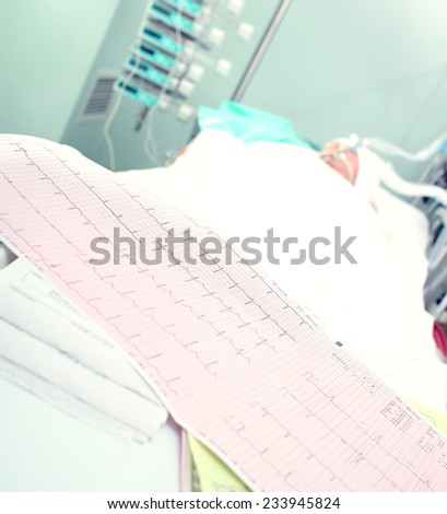 Electrocardiogram on a background of seriously ill patients - stock photo