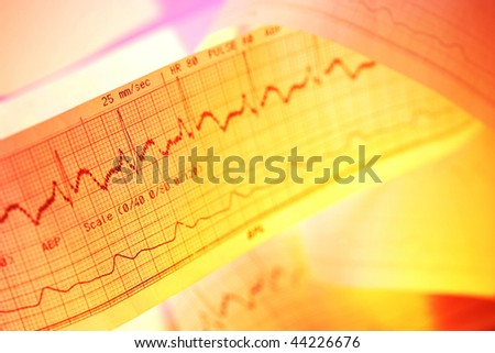 Electrocardiograph-ECG - stock photo