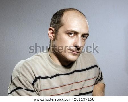 Emotional bald man. Alert - stock photo