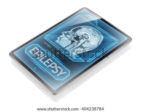 Epilepsy diagnosis displayed on modern tablet - stock photo