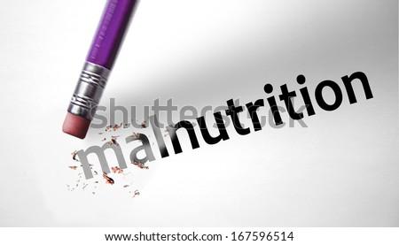 Eraser deleting the word Malnutrition - stock photo