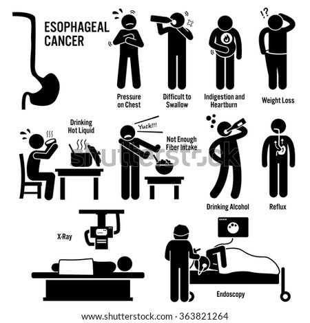 Esophageal Esophagus Throat Cancer Symptoms Causes Risk Factors Diagnosis Stick Figure Pictogram Icons - stock photo