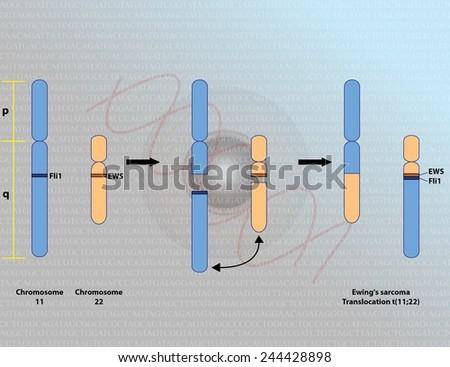 Ewing's sarcoma chromosomal translocation - stock photo