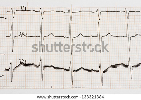 Excitedly heart. Mild sings of arrhythmia. Close up of ECG graph. - stock photo