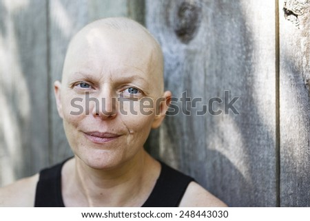 Exterior portrait of a middle-aged woman fighting breast cancer. Showing hair loss from the chemotherapy treatments. - stock photo