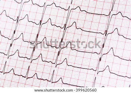 Extrasystoles On Electrocardiogram Record Paper - stock photo